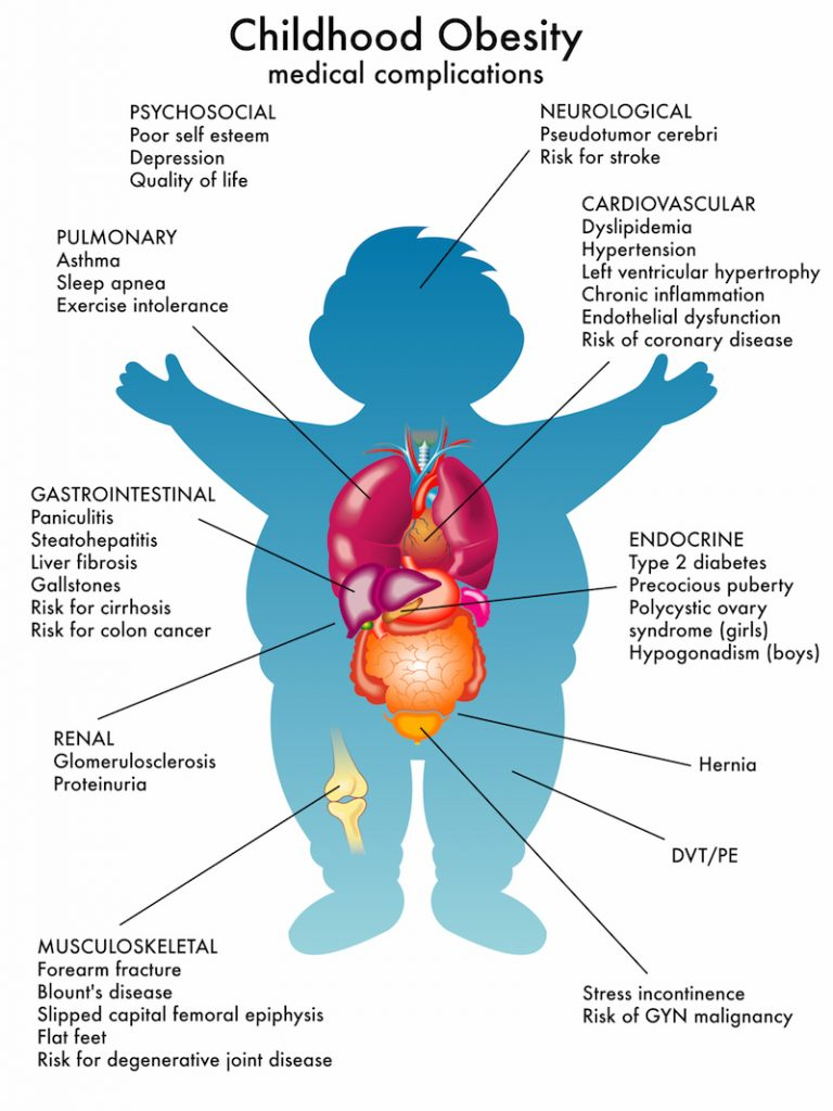 Childhood Obesity Medical Complications - Millennium Family Practice